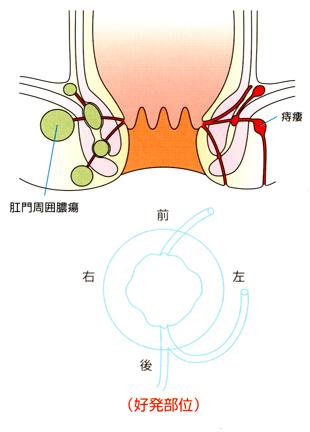 肛門周囲膿瘍と痔瘻